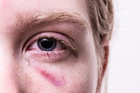 Eye Injury Attorney Hollywood, FL